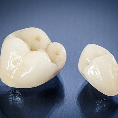customized dental crowns sitting next to each other on a countertop